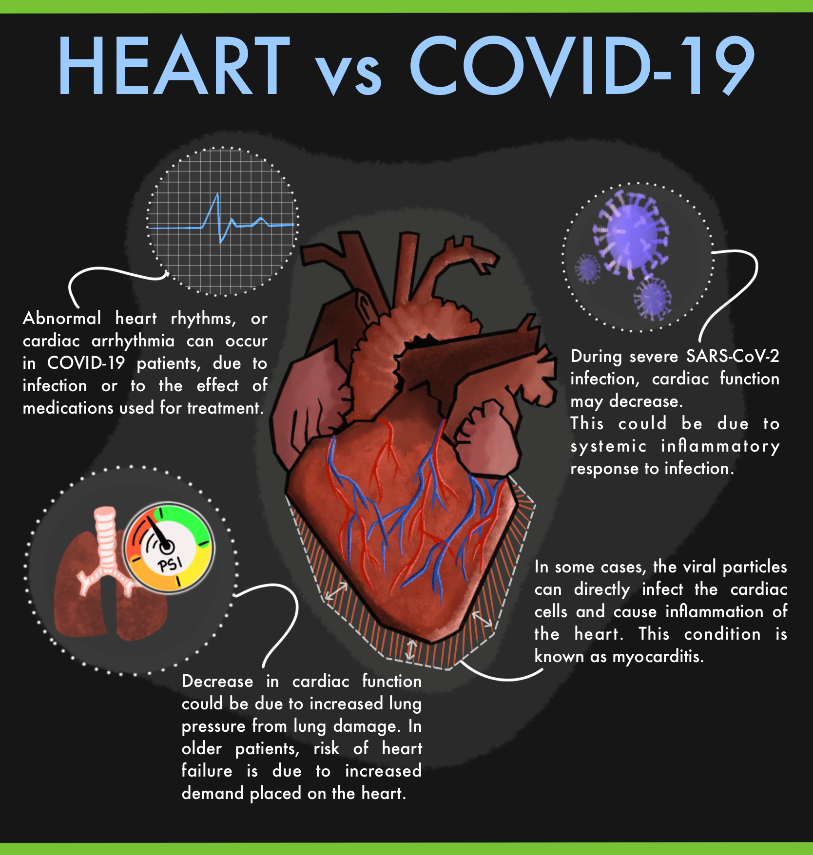 What COVID means for an athlete's heart
